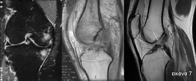 Μαγνητική τομογραφία (MRI) ρηξη ΠΧΣ