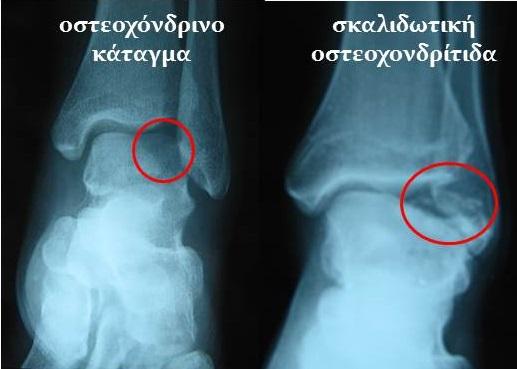 Χ-rays κάταγμα κ οστεοχονδρίτιδα