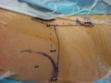 arthroscopic portals image 16